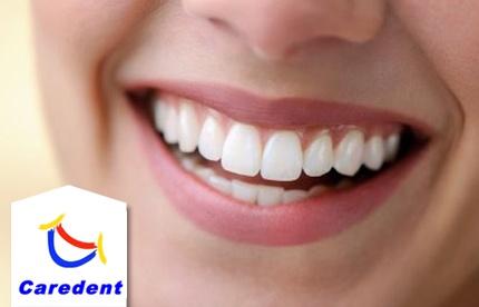 implantes dentales en republica dominicana gratis